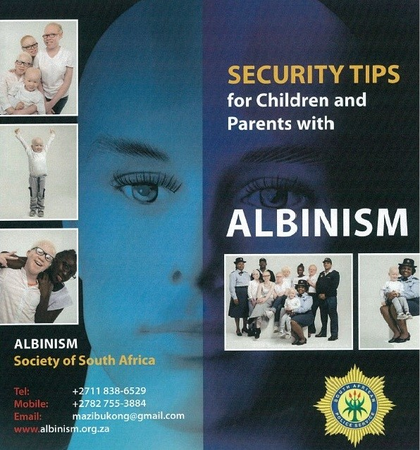 Today is International #AlbinismAwarenessDay. Know More and Be Safe!!