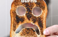 What are the most common types of Burns and how do we treat them?